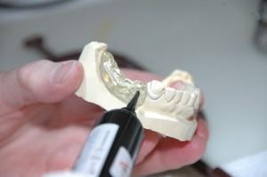 bts-prothesiste-dentaire